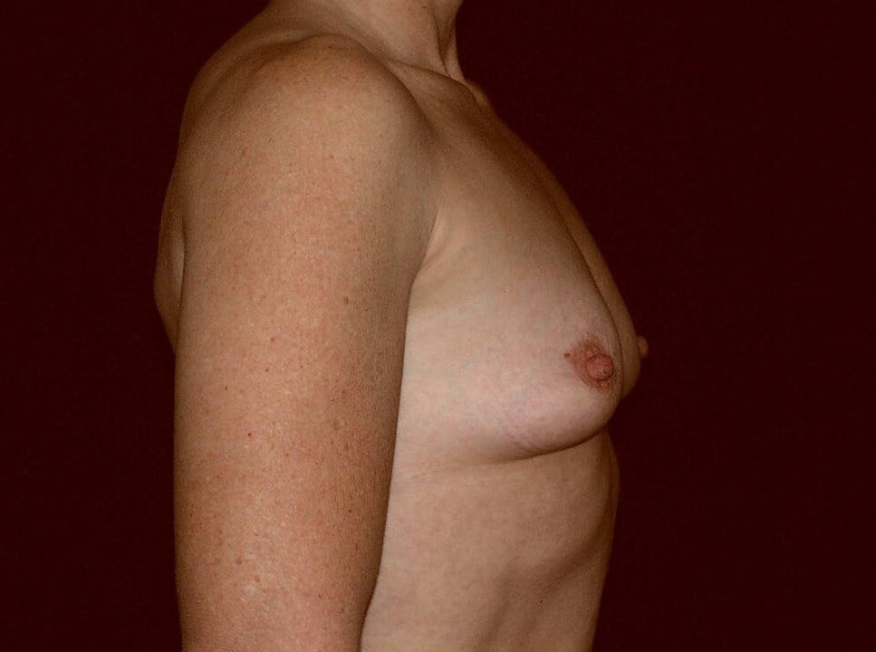 Breast Augmentation Gallery - Patient 39245406 - Image 5