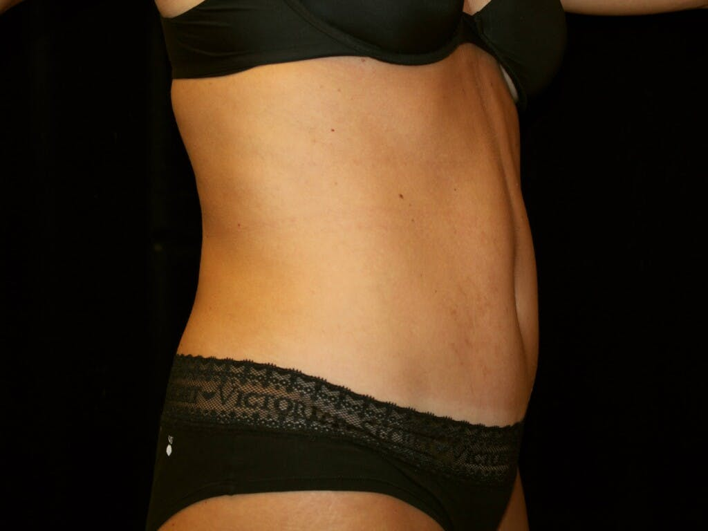 Tummy Tuck Gallery - Patient 39245408 - Image 6