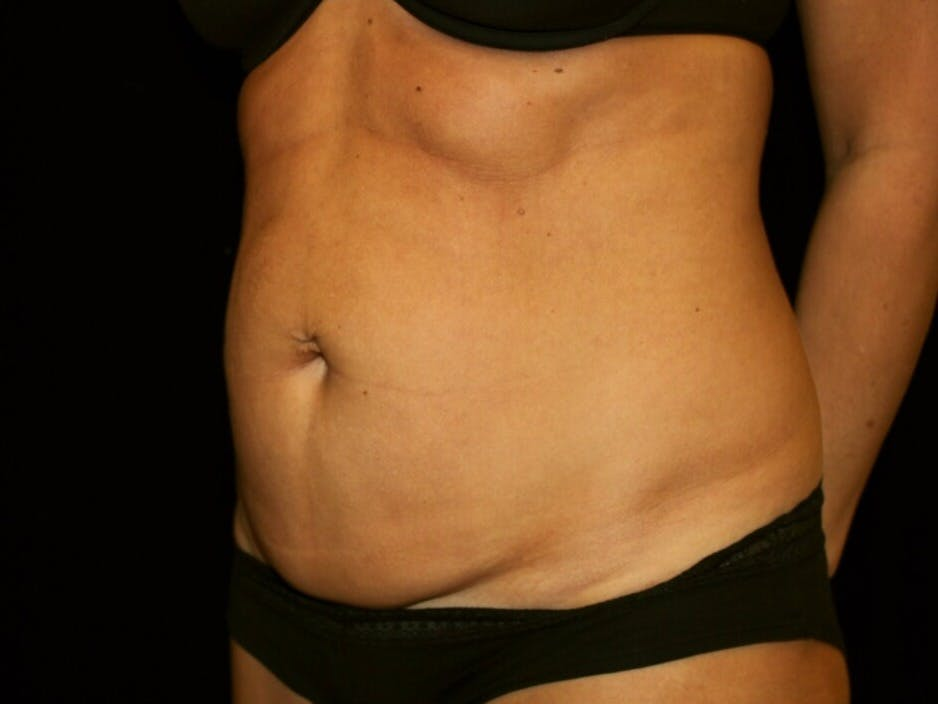 Tummy Tuck Gallery - Patient 39245408 - Image 7