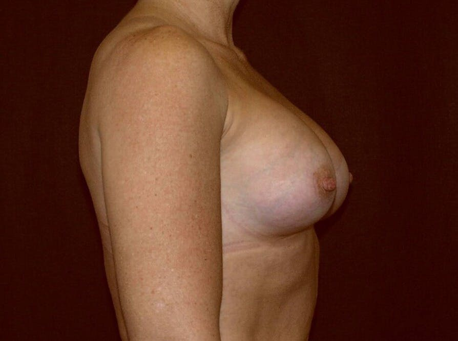 Breast Augmentation Gallery - Patient 39245406 - Image 6