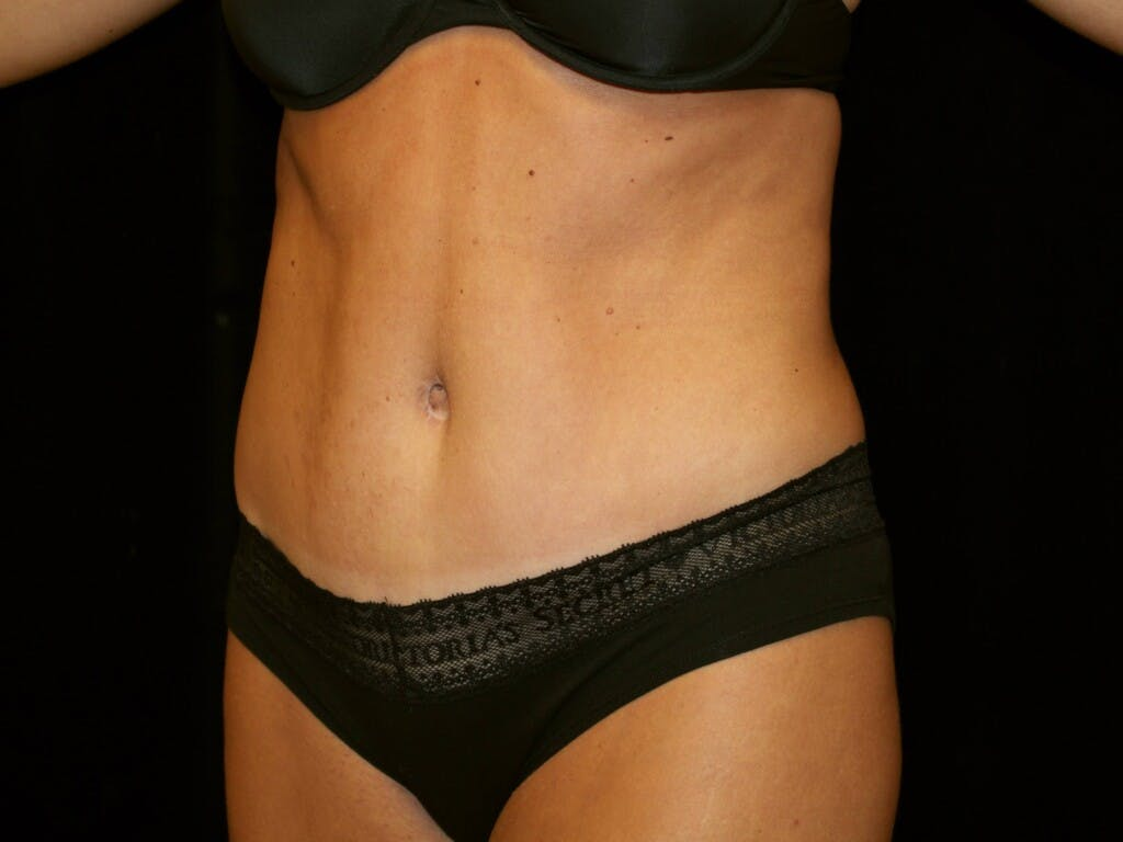 Tummy Tuck Gallery - Patient 39245408 - Image 8