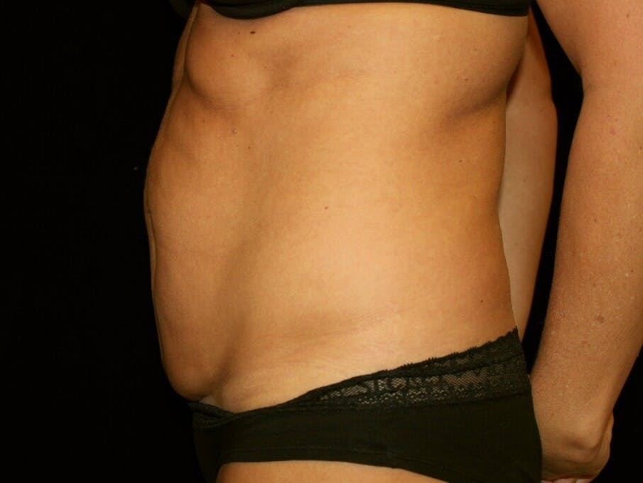 Tummy Tuck Gallery - Patient 39245408 - Image 9