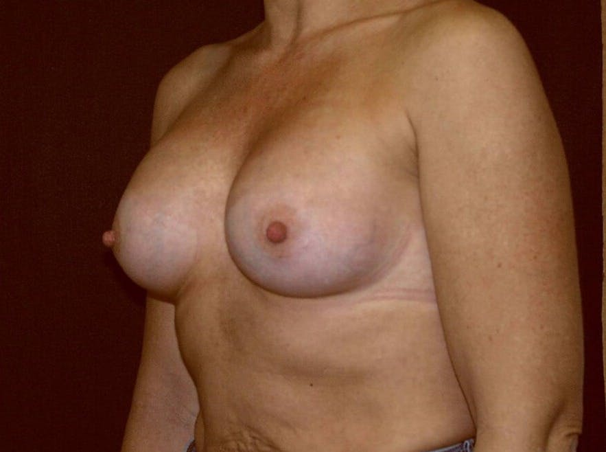 Breast Augmentation Gallery - Patient 39245406 - Image 8