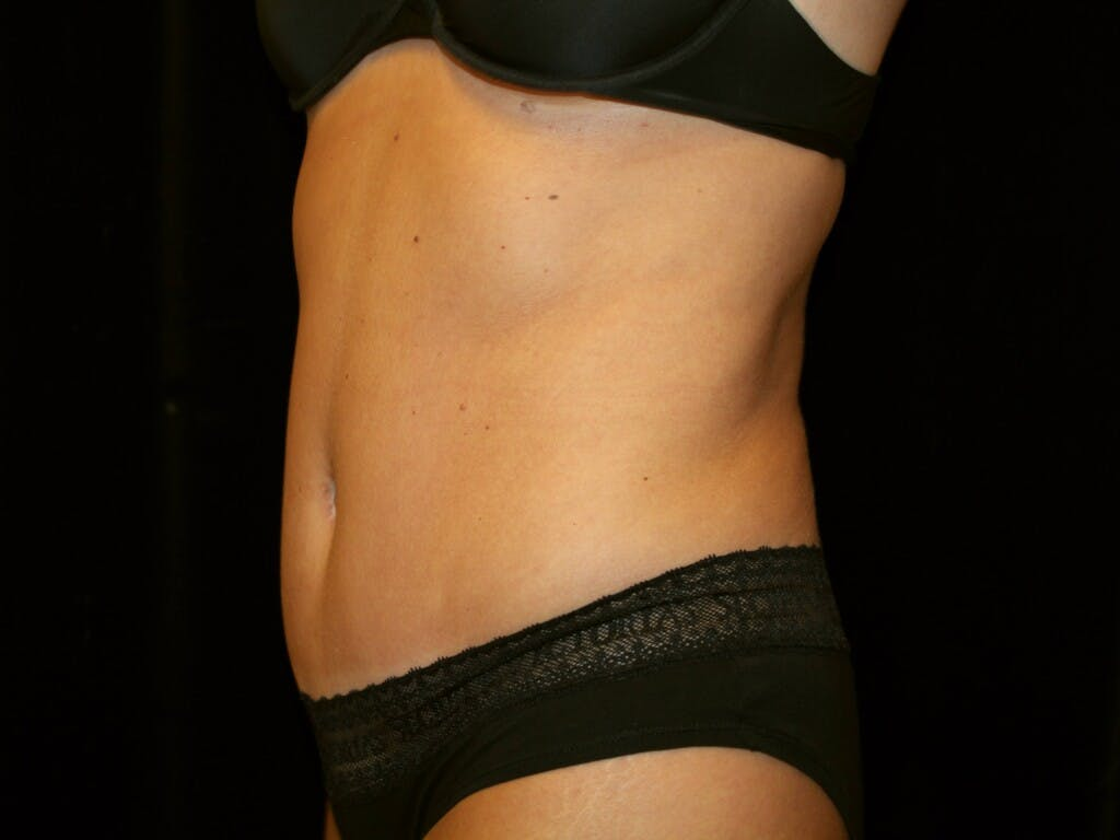 Tummy Tuck Gallery - Patient 39245408 - Image 10
