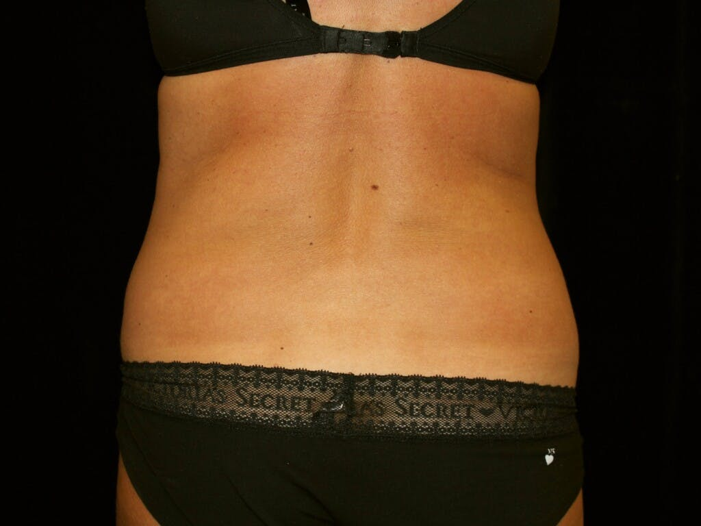 Tummy Tuck Gallery - Patient 39245408 - Image 11