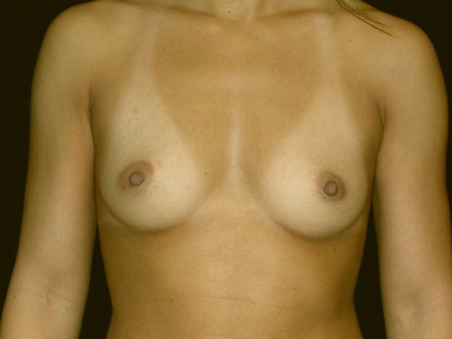 Breast Augmentation Gallery - Patient 39245413 - Image 1