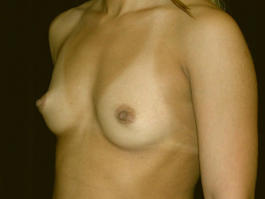 Breast Augmentation Gallery - Patient 39245413 - Image 3