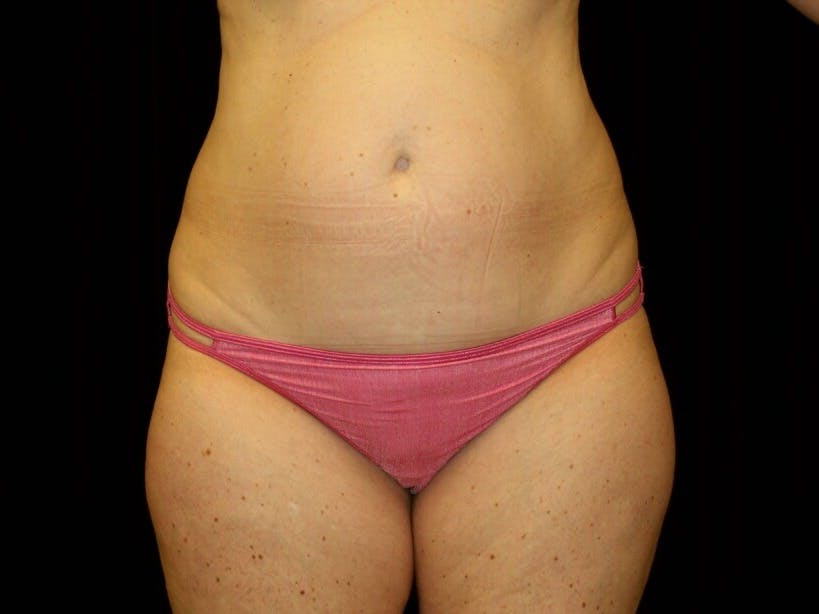 Tummy Tuck Gallery - Patient 39245414 - Image 1