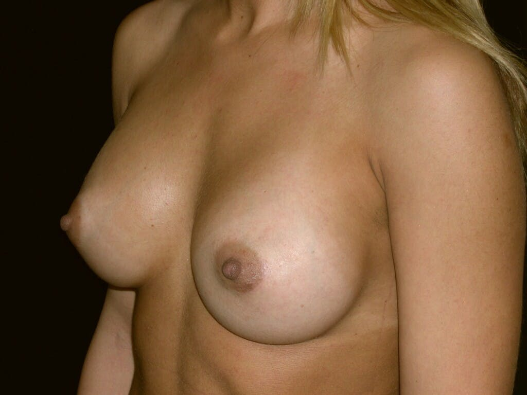 Breast Augmentation Gallery - Patient 39245413 - Image 4