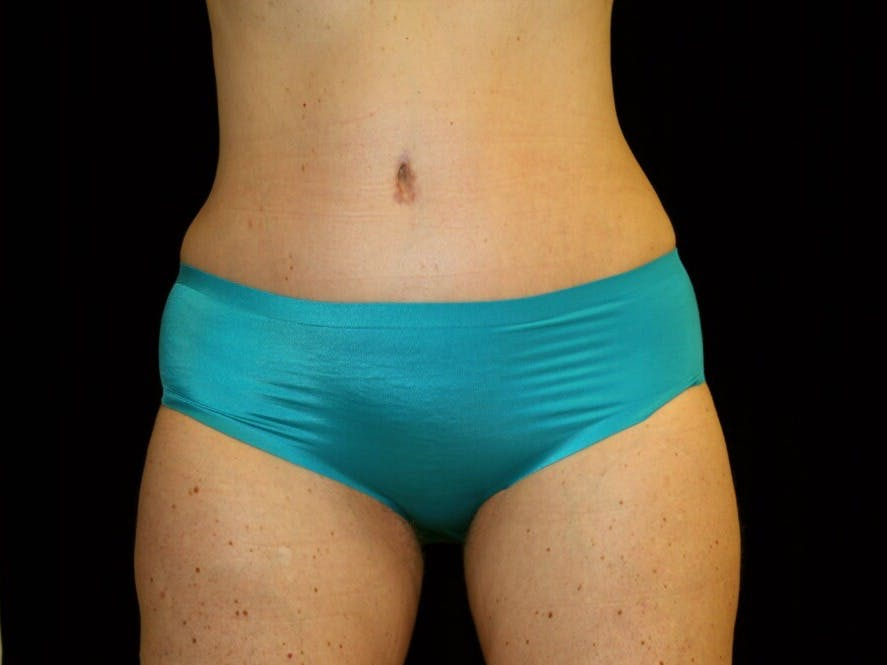 Tummy Tuck Gallery - Patient 39245414 - Image 2