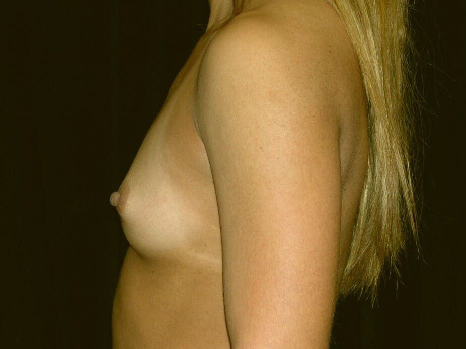 Breast Augmentation Gallery - Patient 39245413 - Image 5