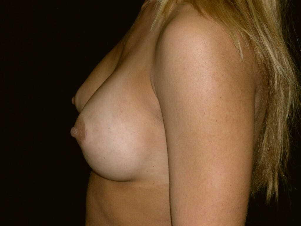 Breast Augmentation Gallery - Patient 39245413 - Image 6