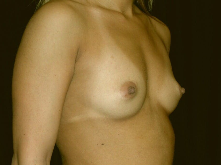 Breast Augmentation Gallery - Patient 39245413 - Image 7
