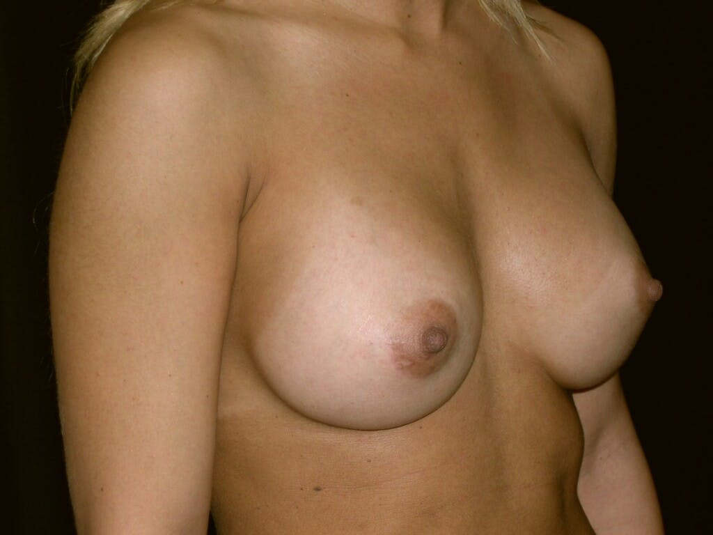 Breast Augmentation Gallery - Patient 39245413 - Image 8