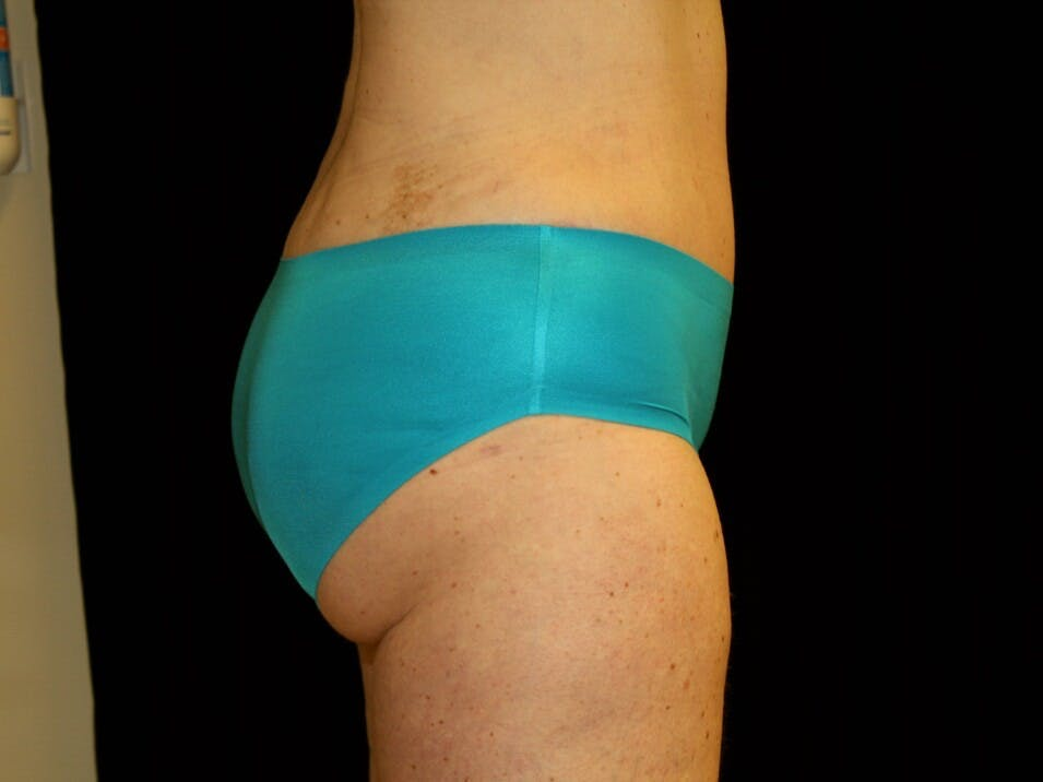 Tummy Tuck Gallery - Patient 39245414 - Image 6