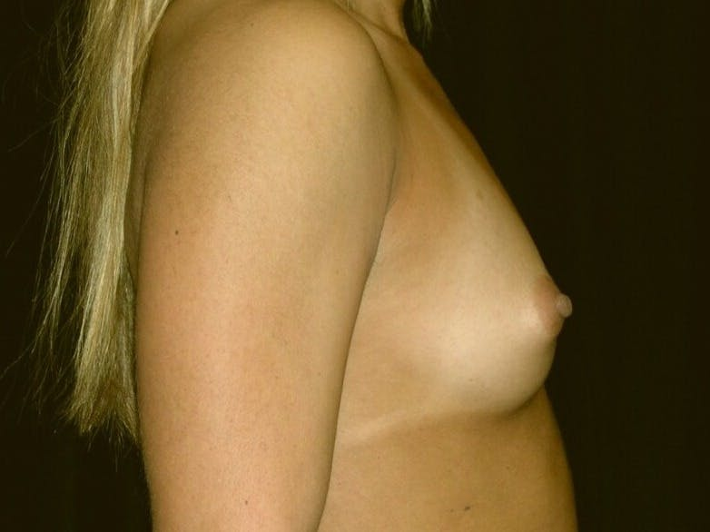 Breast Augmentation Gallery - Patient 39245413 - Image 9