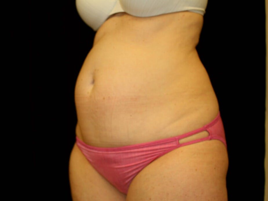 Tummy Tuck Gallery - Patient 39245414 - Image 7