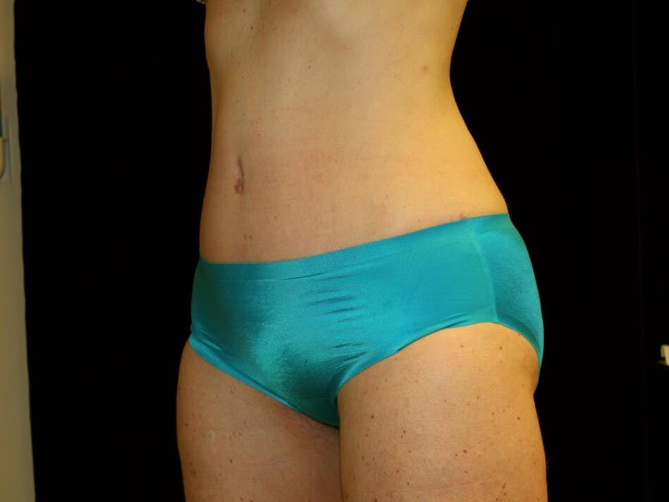 Tummy Tuck Gallery - Patient 39245414 - Image 8