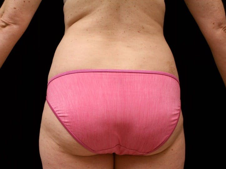 Tummy Tuck Gallery - Patient 39245414 - Image 9