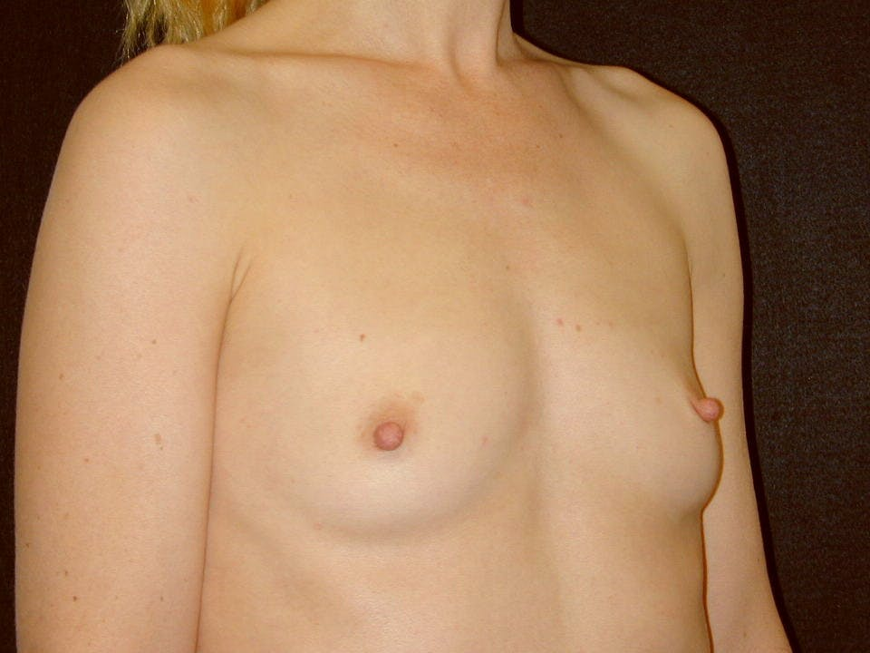 Breast Augmentation Gallery - Patient 39245415 - Image 1