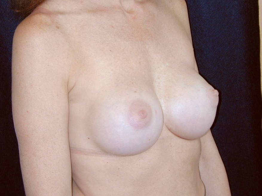 Breast Augmentation Gallery - Patient 39245415 - Image 2