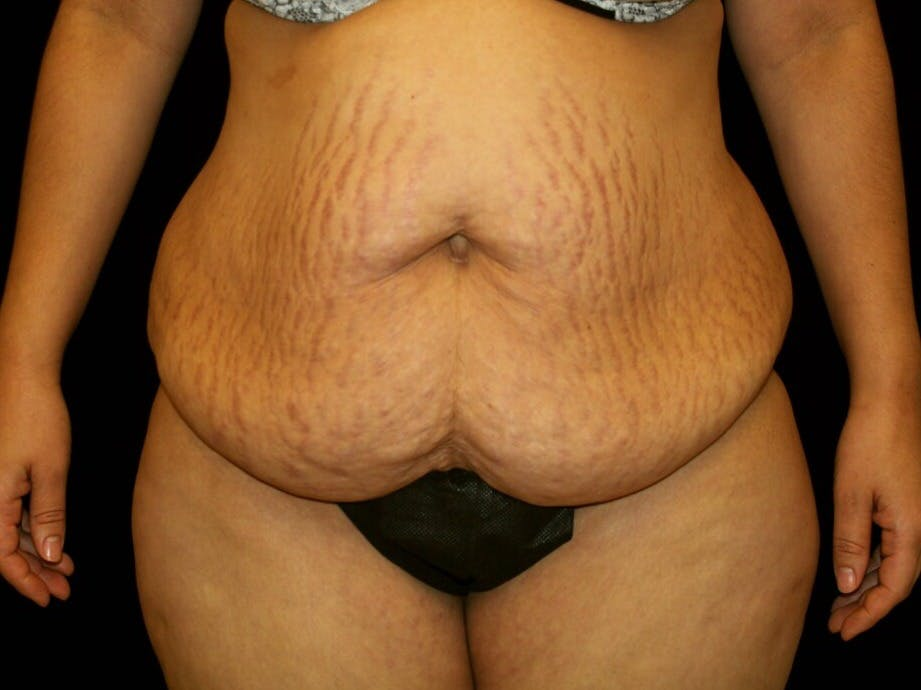 Tummy Tuck Gallery - Patient 39245416 - Image 1
