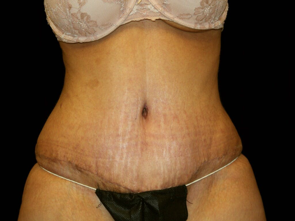 Tummy Tuck Gallery - Patient 39245416 - Image 2