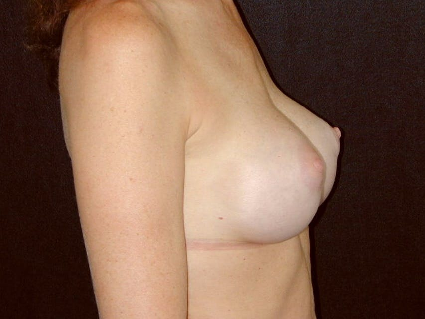 Breast Augmentation Gallery - Patient 39245415 - Image 4