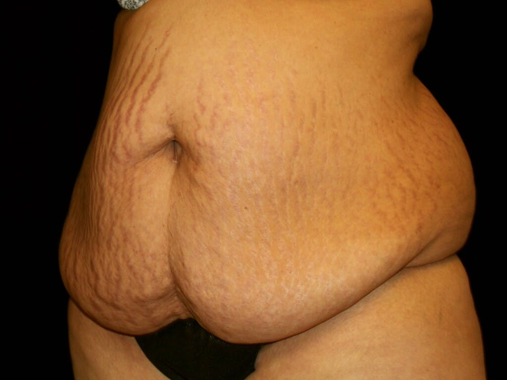 Tummy Tuck Gallery - Patient 39245416 - Image 3