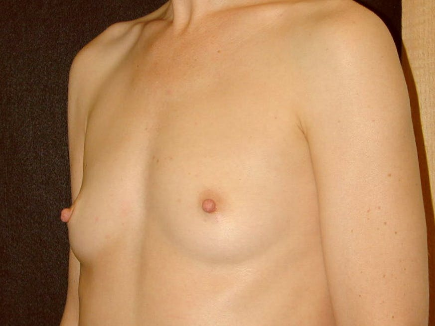 Breast Augmentation Gallery - Patient 39245415 - Image 5