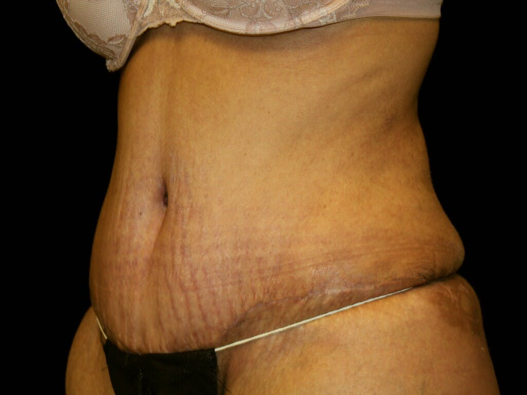 Tummy Tuck Gallery - Patient 39245416 - Image 4