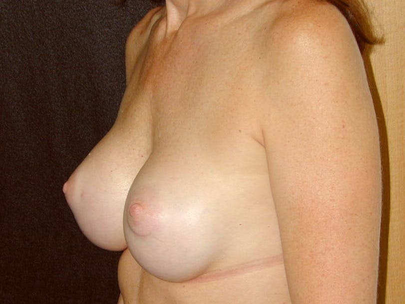 Breast Augmentation Gallery - Patient 39245415 - Image 6