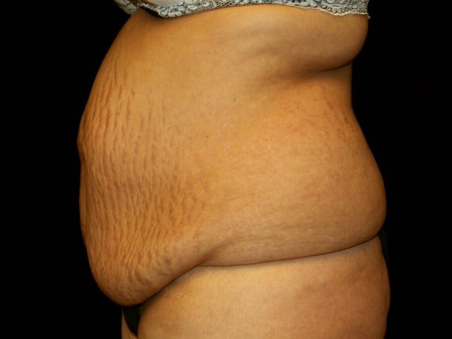 Tummy Tuck Gallery - Patient 39245416 - Image 5