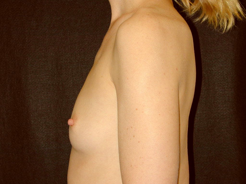 Breast Augmentation Gallery - Patient 39245415 - Image 7