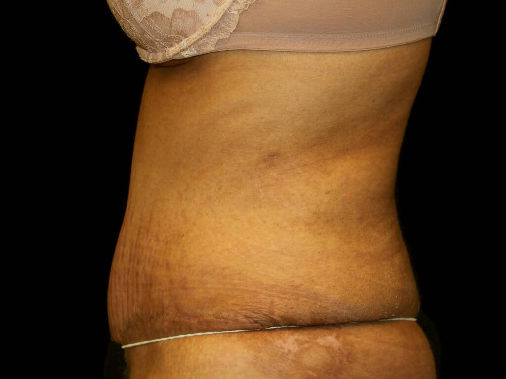 Tummy Tuck Gallery - Patient 39245416 - Image 6
