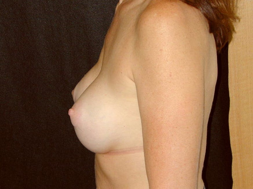 Breast Augmentation Gallery - Patient 39245415 - Image 8