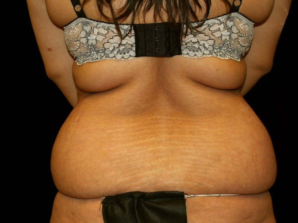 Tummy Tuck Gallery - Patient 39245416 - Image 7