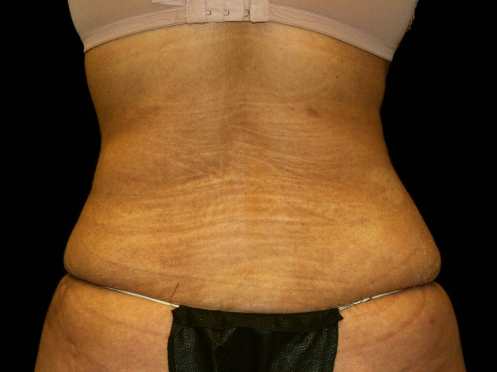 Tummy Tuck Gallery - Patient 39245416 - Image 8