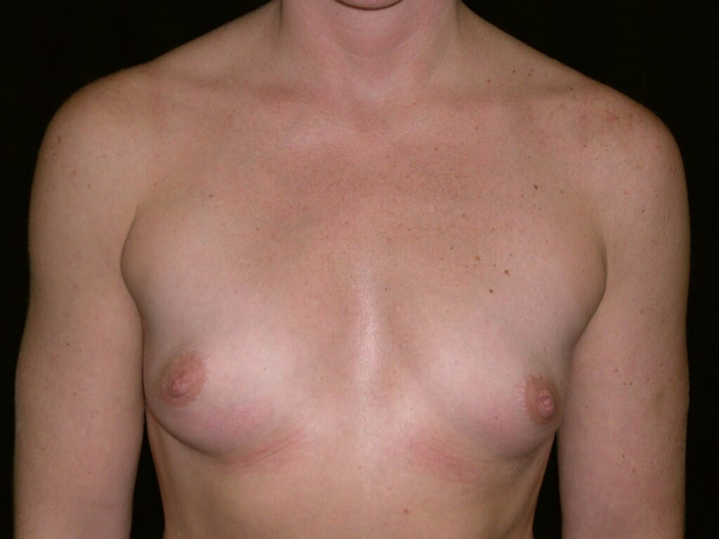 Breast Augmentation Gallery - Patient 39245419 - Image 1
