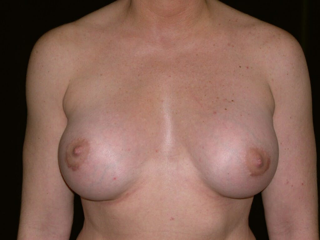 Breast Augmentation Gallery - Patient 39245419 - Image 2