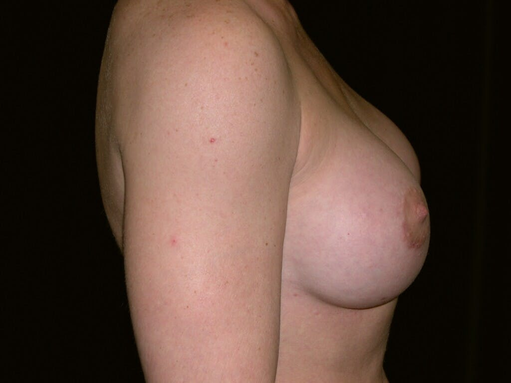 Breast Augmentation Gallery - Patient 39245419 - Image 4