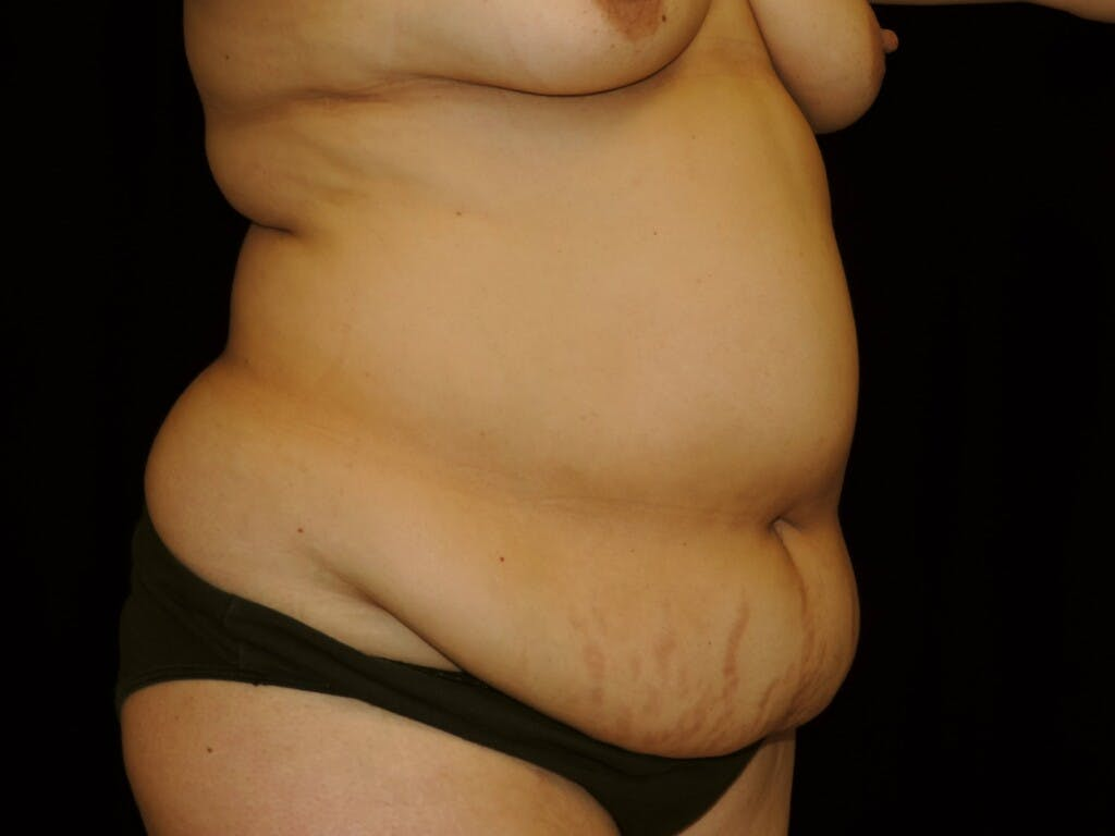 Tummy Tuck Gallery - Patient 39245422 - Image 3