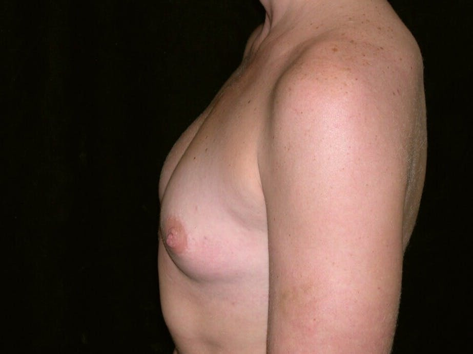 Breast Augmentation Gallery - Patient 39245419 - Image 5