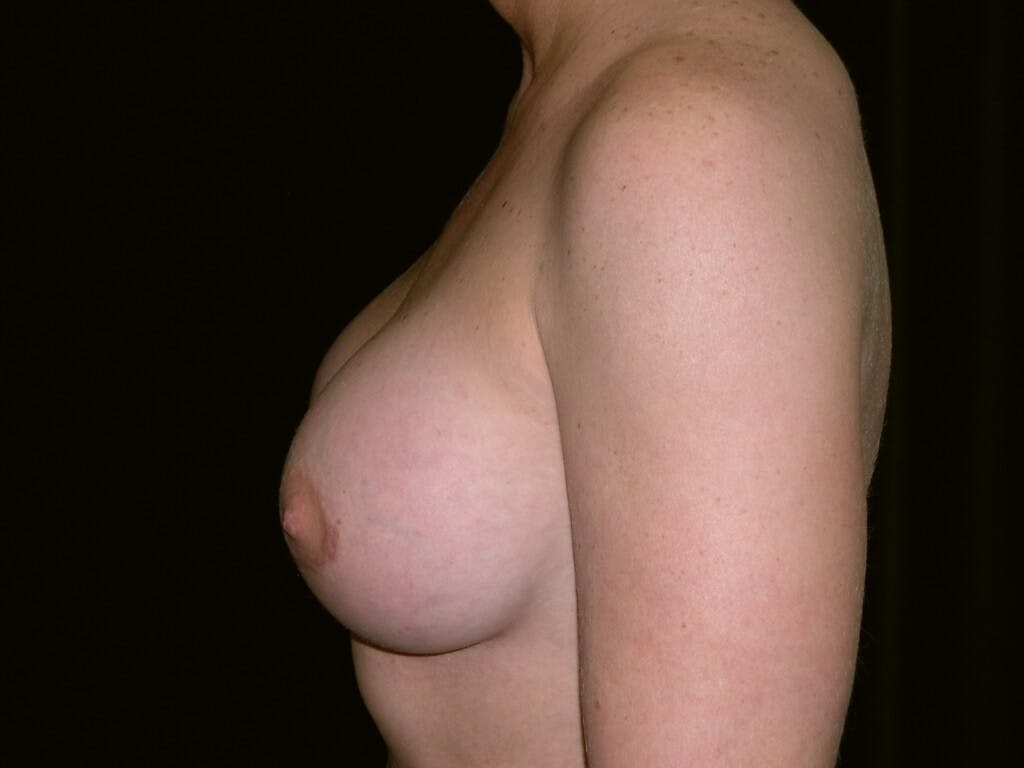 Breast Augmentation Gallery - Patient 39245419 - Image 6