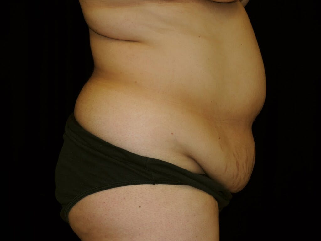 Tummy Tuck Gallery - Patient 39245422 - Image 5