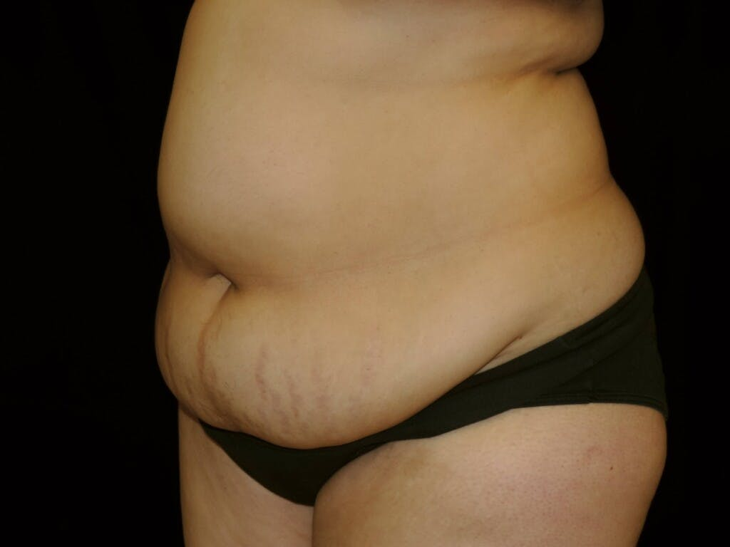 Tummy Tuck Gallery - Patient 39245422 - Image 7