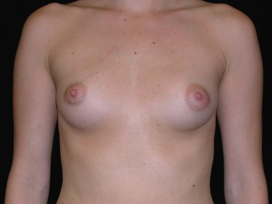 Breast Augmentation Gallery - Patient 39245426 - Image 1