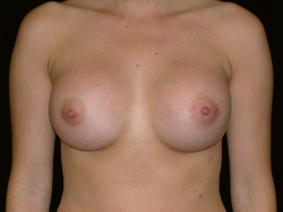 Breast Augmentation Gallery - Patient 39245426 - Image 2