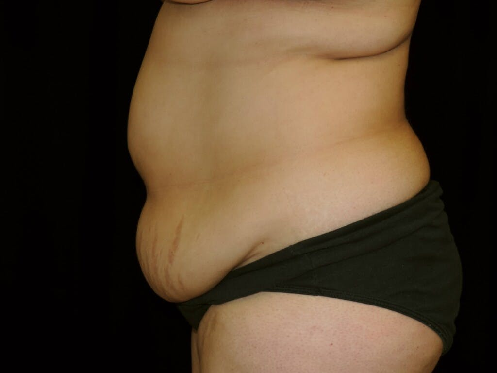 Tummy Tuck Gallery - Patient 39245422 - Image 9