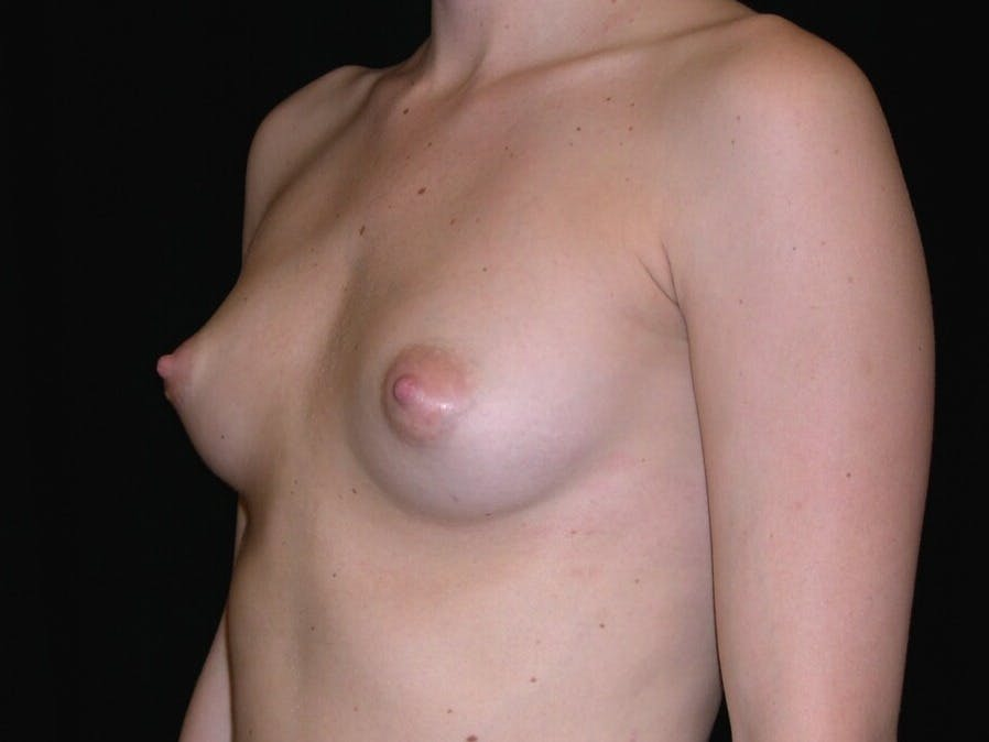 Breast Augmentation Gallery - Patient 39245426 - Image 3
